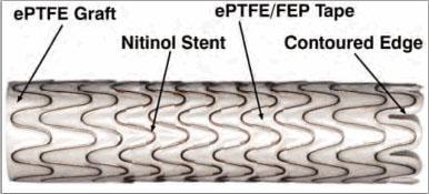 Gore Viabahn Endoprosthesis Heparin Bioactive Surface Stent Grafts Aneurism
