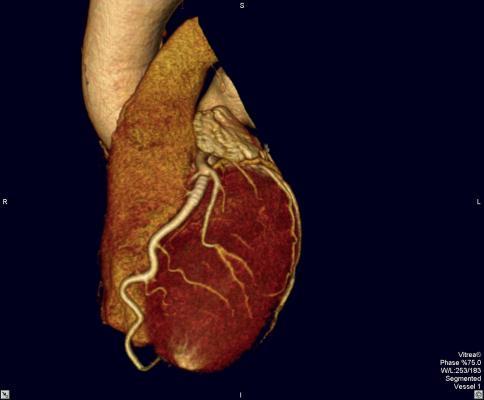 protein, heart failure, trial, RBFox2, cardiac diagnostics, UC San Diego