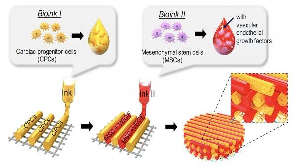 Schematic illustration of a pre-vascularized stem cell patch having multiple stem cell-laden bio-inks to encorage heart cell regrowth at infarct areas.With permission from Elsevier. Read the original article.Jinah Jang, Reprinted from Biomaterials, Vol 112, Jinah Jang et al., 3D printed complex tissue construct using stem cell-laden decellularized extracellular matrix bioinks for cardiac repair, Pages 264-274, Copyright (2017),