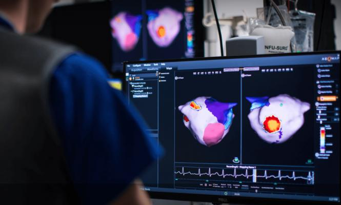 """The U.S. Food and Drug Administration (FDA) cleared the Acutus Medical SuperMap, an addition to its AcQMap 3-D imaging and mapping system used to guide electrophysiology (EP) catheter ablation procedures. Adding the SuperMap mode to the AcQMap system enables users to visualize any atrial rhythm in less than three minutes. Rapidly mapping and re-mapping the whole heart chamber facilitates a new procedural workflow in EP ablation, making it practical to execute an iterative """"map, ablate, re-map"""" approach."""