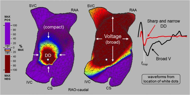 Charge Density Mapping Eliminates Repeat Ablation for Atrial Fibrillation at One Year