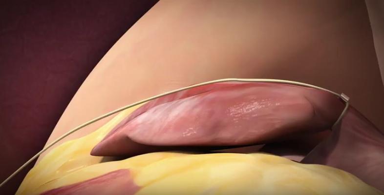 Aegis Medical Innovations, Sierra Ligation System, U.S. clinical trial, FDA approval, LAA occluder