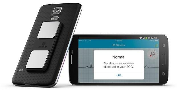 AliveCor, AliveECG app, ECG recording, remote wireless, mobile, patient