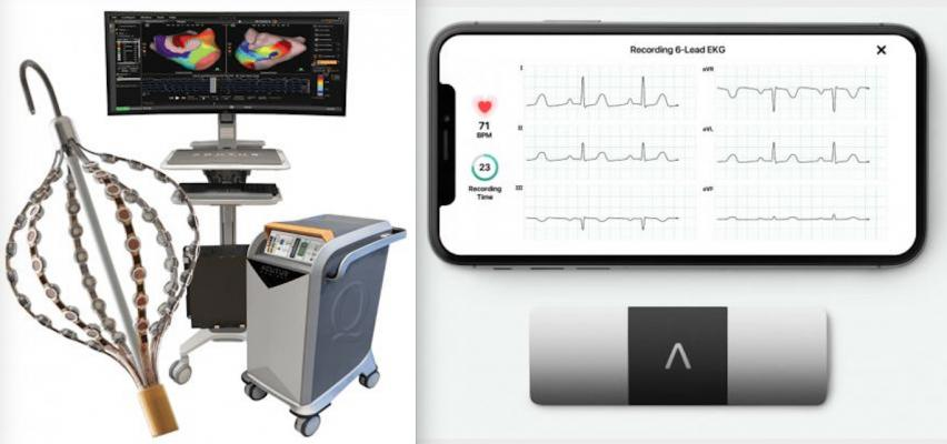 The AcQMap 3D Imaging and Mapping System, left, and the AliveCor KardiaMobile device and app for personal ECG monitoring using a smartphone, right. The companies plan to use remote monitoring to see if it helps improve care for ablation patients.