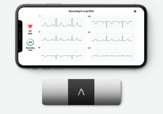 AliveCor's KardiaMobile six-lead ECG system that works on smartphone platforms. It was cleared in 2019 and includes artificial intelligence algorithms to help identify arrhythmias.