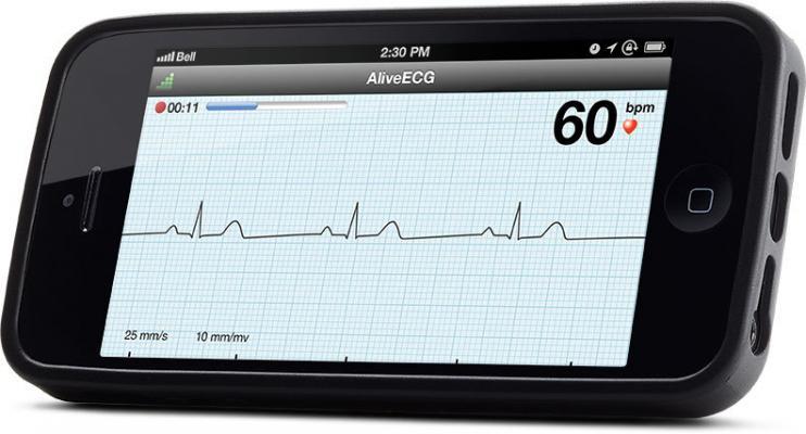 AliveCor AliveECG App Heart Monitor ECG Wireless Remote Access Mobile Device