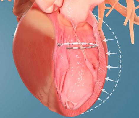 Positive Safety, Efficacy Data Reported on AccuCinch Heart Failure Device