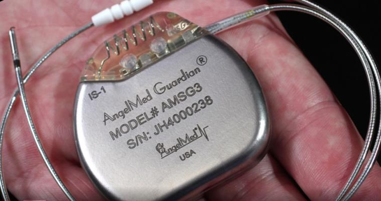 The FDA has cleared Angel Medical Systems' second-generation AngelMed Guardian device. The implantable cardiac device detects and warns patients if they are having an acute coronary syndrome (ACS) event, including silent heart attacks. The new, second-generation device is enhanced with ease-of-use adaptations and an updated, long life battery that could potentially double the life of the implanted device