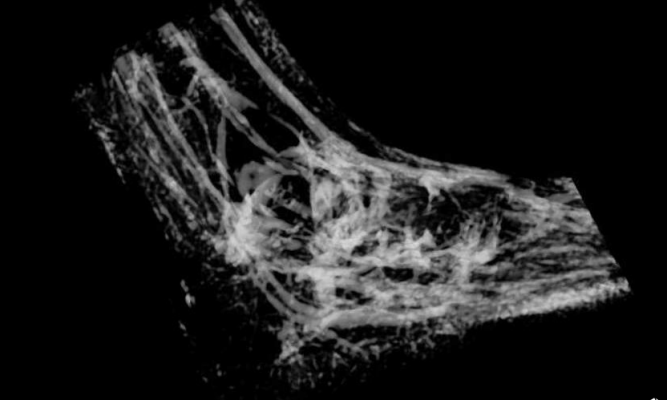 critical limb ischemia, amputations, MRI-based mapping, CLI, British Heart Foundation