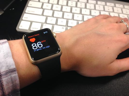 The Apple Watch Series 2, Samsung Galaxy Gear S3 and the Fitbit Charge 2 were all able to properly diagnose the very rapid heart beats involved in  paroxysmal supraventricular tachycardia (PSVT). #HRS2018