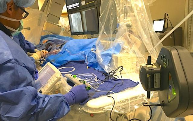 A CSI Diamondabck 360 atheretectomy system in use during a cath lab procedure at Henry Ford Hospital in Detroit. Photo by Dave Fornell