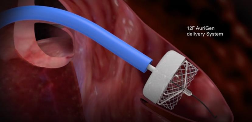 Aurigen Medical Atrial Fibrillation Device Wins ICI Innovation Award