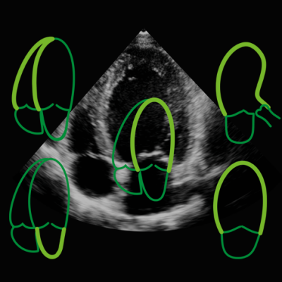 TomTec's auto strain assessment of the left ventricle on echo.
