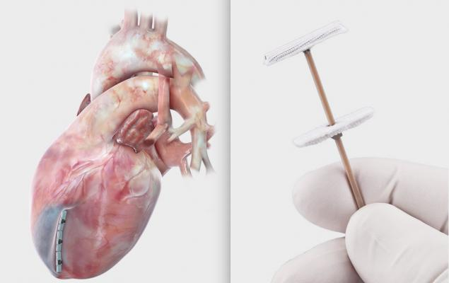 The BioVentrix Revivent TC transcatheter device anchors that help cinch the heart mucsle using a transcatheter procedure to treat left ventricular remodeling associated with heart failure following a heart attack. BioVentrix Inc., developer of the first transcatheter device for left ventricular remodeling after a heart attack, announced the extension of its European CE mark approval for the Revivent TC Transcatheter Ventricular Enhancement System for heart failure to May 2024.