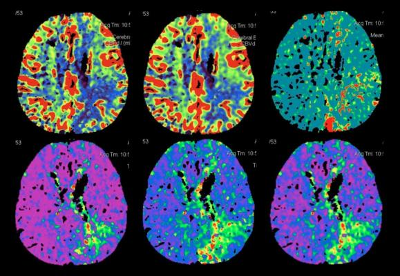 endovascular therapy, stroke clot removal, CT perfusion, brain imaging, International Stroke Conference study