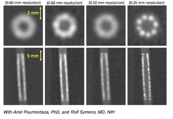 Comparison of 0.5 to 0.25 mm CT scanner resolution showing a coronary stent