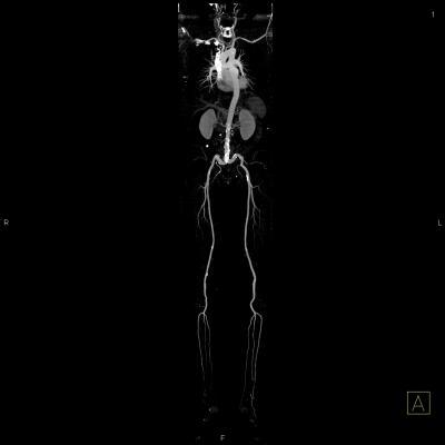 SHAPE, task force, CT calcium scoring, carotid artery ultrasound, SHAPE Trial advisory meeting