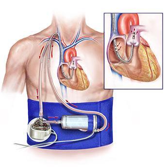 Protek Duo, VV ECLS, CE mark, CardiacAssist, veno-venous cannula