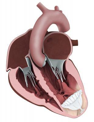 CardioKinetix, Parachute device, heart failure, 500th implantation, PARACHUTE IV Trial
