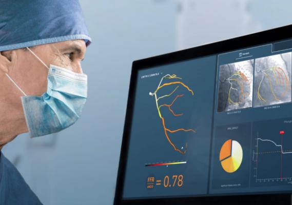 The CathWorks angiography image derived FFRassessment system has received national reimbursement approval in Japan. The system uses a rotational angiography image dataset taken while the patient is in the cath lab to quickly reconstruct a 3-D coronary tree showing FFR numbers for all of the artery segments.