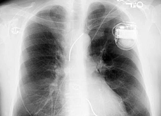 Artificial Intelligence Can Improve Emergency X-ray Identification of Pacemakers