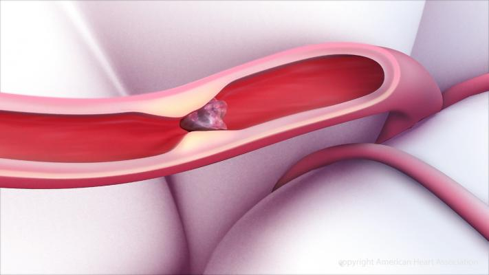 Delayed Clot Removal Still Improves Quality of Life Post-Stroke