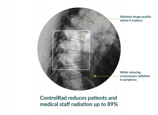ControlRad Announces FDA Clearance and Launch of ControlRad Trace