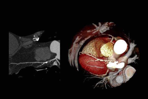 Cardiac CT scan showing plaque and calcification in the coronary arteries, from a Toshiba CT scanner