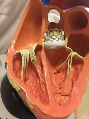 Health Canada has approved the expanded use of the Edwards Lifesciences Sapien 3 and Sapien 3 Ultra transcatheter aortic valve replacement (TAVR) heart valves for the transfemoral treatment of patients diagnosed with severe symptomatic aortic stenosis who are at low risk for open-heart surgery. #TAVR #TAVI