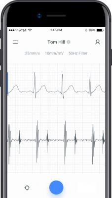 AI Algorithm Outperforms Most Cardiologists in Heart Murmur Detection