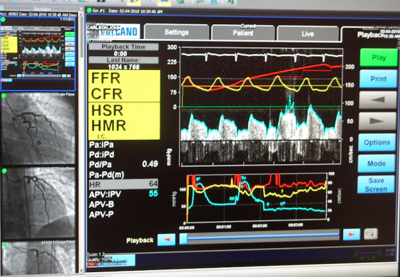 FFR software on the GE Centricity CVIS. A trial from the 2018 EuroPCR meeting showed FFR improves long-term outcomes.