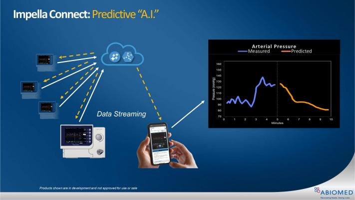 The Abiomed Impella Connect allows data streaming from the Impella control consoles to the cloud, where the next step will be to apply predictive artificial intelligence (AI) algorithms.
