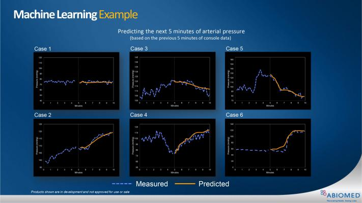 Figure 2: Six cases of machine learning using Impella Console data to predict patient arterial pressures over the next five minutes.