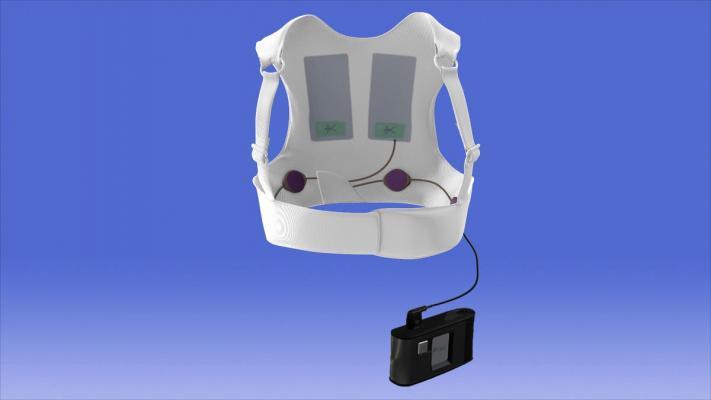Zoll LifeVest wearable defibrillator, WEARIT-II Registry results, CardioStim EuroPace 2016