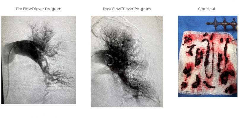 Patient case example of the FlowTriever thrombectomy device from Inari Medical Inc. in removing a pulmonary embolism and reporting blood flow and clot burden removed by the system. #TCT2020 #TCTconnect