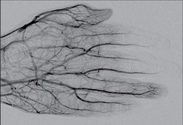 DSA image obtained approximately 24 hours after 1 mg/h IA tPA infusion, 500 U/h heparin via peripheral IV, and daily oral aspirin (81 mg) shows improved perfusion of digital arteries, albeit with suboptimal vascular blush of distal second and third phalanges. Photo courtesy of ARRS