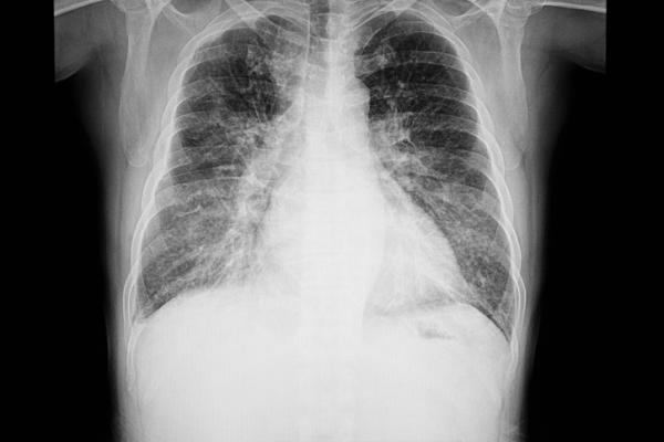 Chest X-ray of a congestive heart failure patient, showing fluid in the lower portions of the lungs and an enlarged heart. Getty Images