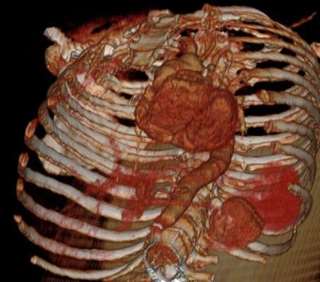 Heart with Aorta