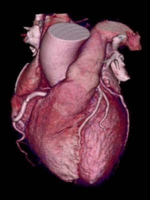 3-D rendering from a cardiac CT scan
