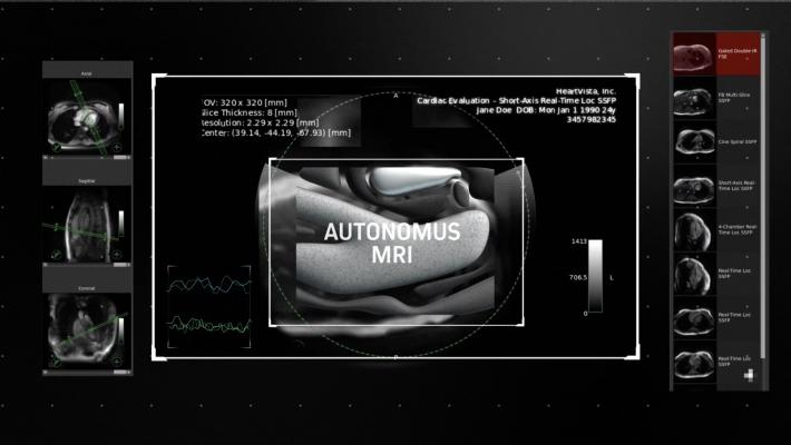 HeartVista Announces One Click Autonomous MRI Solution