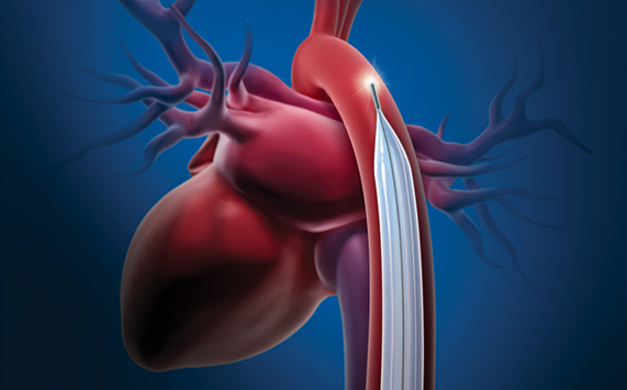 Cardiologists who have experience with COVID-19 patients in New York City say a low threshold should be used to assess patients for cardiogenic shock in the setting of acute systolic heart failure related to COVID-19. If inotropic support fails in these patients, researchers suggest use of an IABP (intra-aortic balloon pump) as the first line mechanical circulatory support device, because it requires the least maintenance from medical support staff. #coronavirus #COVID19 #SARScov2