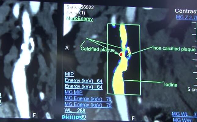 Spectral imaging of arteries