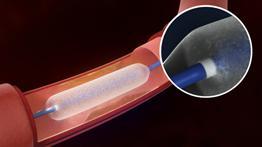 Lutonix Drug Coated Balloon C. R. Bard Inc. PAD Treatments Clinical Trial