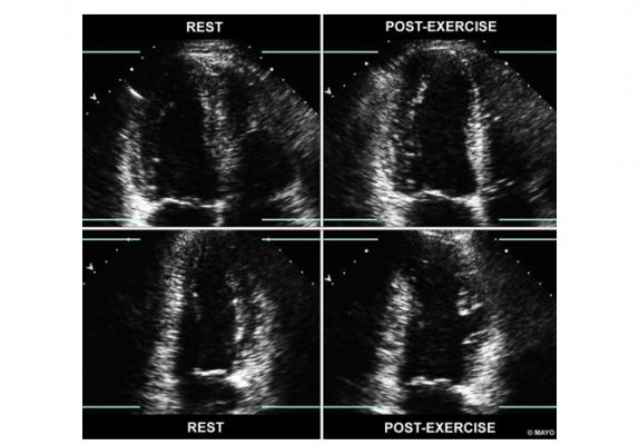 Figure 1 from the new ASE ischemia cardiac ultrasound imaging guidelines, showing a side-by-side views of apical 4- and 2-chamber images, at rest and immediately post-exercise. In the four-chamber view, the left ventricle is shown on the left-hand side of the screen. With exercise, the echocardiogram shows the LV cavity dilates (right quadrants) and there are regional wall motion abnormalities in the LAD territory.