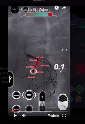 The Cardio Ex cath lab app-based video game for physician training, showing an angiographic view of the coronary arteries with various vascular issues, including stenosis and a dissection.