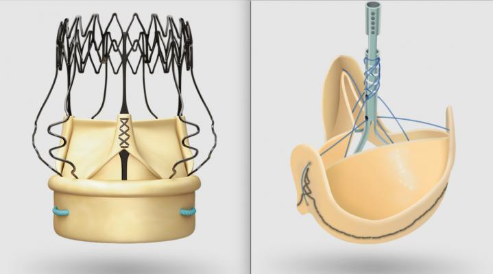 The LivaNova Percelval sutureless aortic valve and Solo Smart surgical aortic valve are part of heart valve portfolio the company sold off June 1 to Gyrus Capital and Corcym..