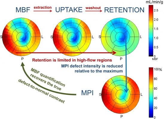 Polar maps demonstrating MBF, uptake, and retention along with their relationship to traditional relative MPI.