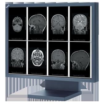 NEC Display Solutions of America Flat Panel Displays RSNA 2012 MultiSync MD211G3