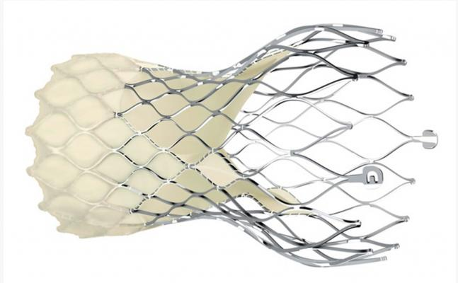 Evolut Low Risk Trial compared the minimally invasive Evolut transcatheter aortic valve replacement (TAVR) system to the gold standard of open-heart surgery in characteristically younger, healthier aortic stenosis patients. The randomized trial, which met its primary non-inferiority endpoint of all-cause mortality or disabling stroke at two years compared to surgery (5.3 vs. 6.7 percent; posterior probability of non-inferiority >0.999), was presented at the American College of Cardiology (ACC) 2019 meeting