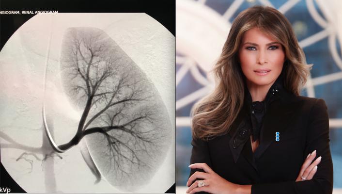 U.S. First Lady Melania Trump Undergoes Interventional Radiology Embolization Procedure